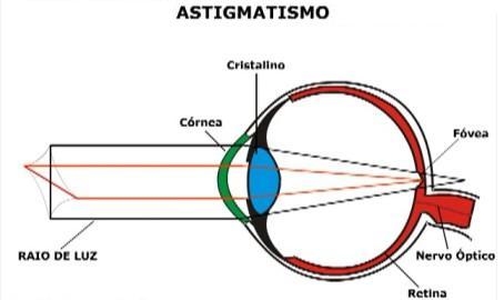 Descrição: http://www.hospitaldeolhosdeirati.com.br/wp-content/uploads/2013/10/astigmatismo.jpg