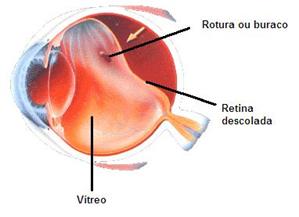 Descrição: http://www.clinicaangelicavilela.com.br/imagem/deslocamento_da_retina.jpg